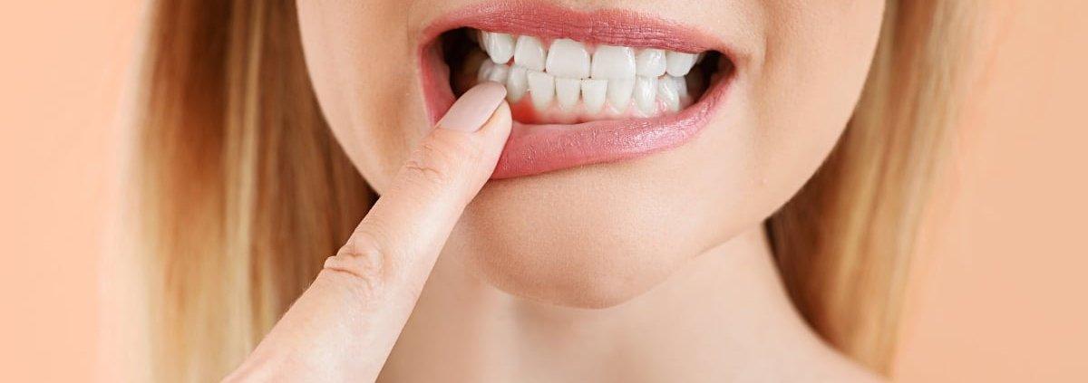Zahnfleischbluten Zahnfleischentzündung - Behandlung Krems / Niederösterreich